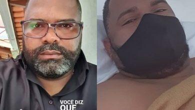 Foto de Carlos Segurança é diagnosticado com apendicite e passa por cirurgia de urgência